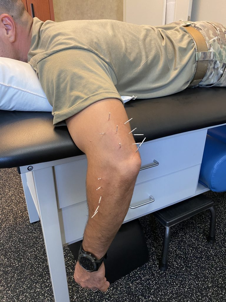 Dry Needling at the Elbow