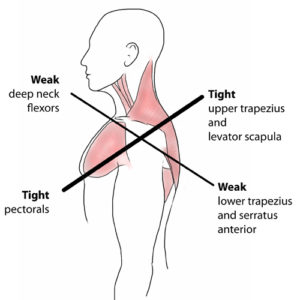 Upper Cross Syndrome Image